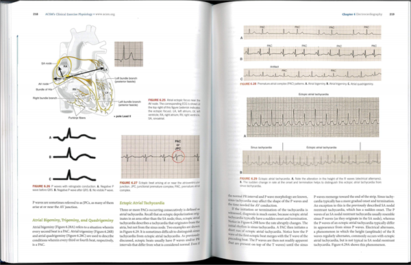 Clinical Exercise Physiology Electrocardiogram